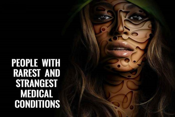 People with rarest and strangest medical conditions